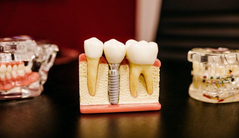 Bästa tandläkaren i Kista