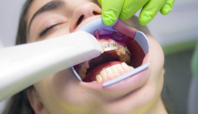 Låt din tandläkare i Järfälla göra jobbet