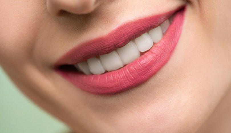 Besök tandläkare för smidig rotfyllning i Sollentuna